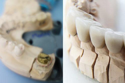 Dental Crowns & Veneers