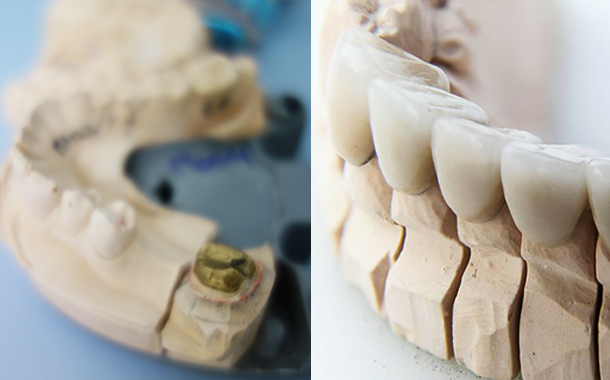 Dental Crowns & Veneers