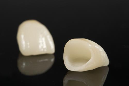 Restorative Dentistry Mooroolbark Dental